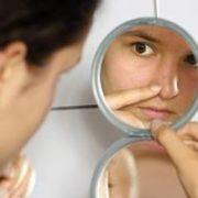 acne juveline et homeopathie